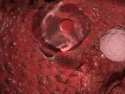 Video: Tận mắt xem các tế bào ung thư lan khắp cơ thể