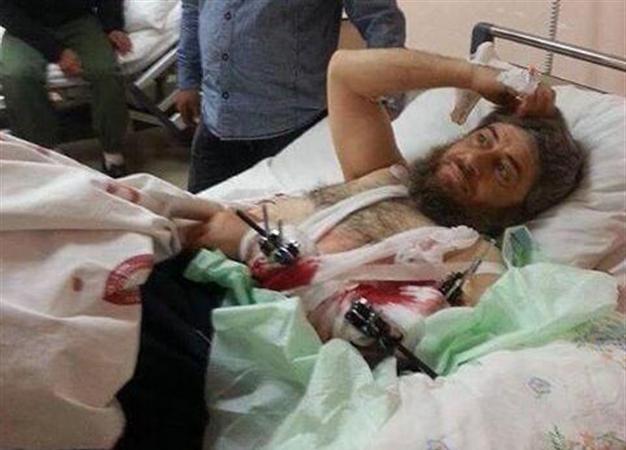 Chỉ huy chiến trường IS có tên là Abu Muhammad, 16.04.2014, đang  điều trị miễn phí tại Bệnh viện nhà nước bang Hatay sau khi bị thương trong chiến trận ở Idlib, Syria. Có vẻ được chăm sóc khá chu đáo.